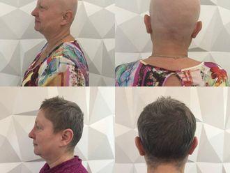 Vypadávání vlasů - 734604