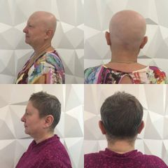 Růst vlasů po chemoterapii
