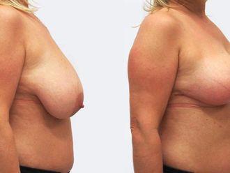 Zmenšení prsou - 786910