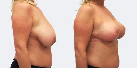 Zmenšení prsou - MUDr. Peter Ondrejka - MEDICOM Clinic