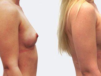 Zvětšení prsou - 786916