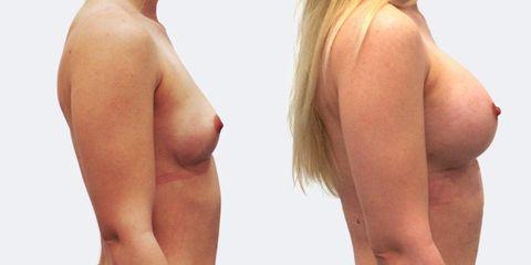 Zvětšení prsou - MUDr. Peter Ondrejka - MEDICOM Clinic