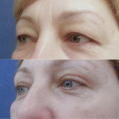Operace očních víček - ESTETICUSTI s.r.o.