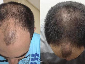 Léčba vypadávání vlasů pomocí plazmaterapie - 736166