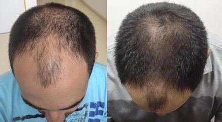 Před a Po-kombinace vlasové plasma terapii a mezo terapii-Aether Clinic Prague