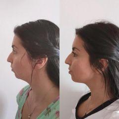 Před a Po-Injekční lipolýza-Aether Clinic Prague