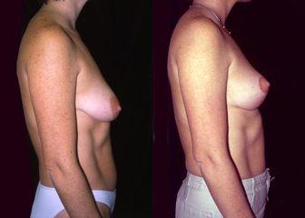 27 1 modelace prsou