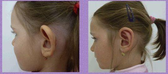 uši 5