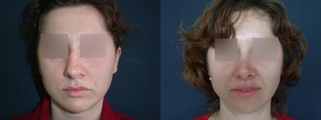 rhinoplastika 5a blur