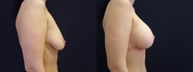 modelace s implantaty 3b