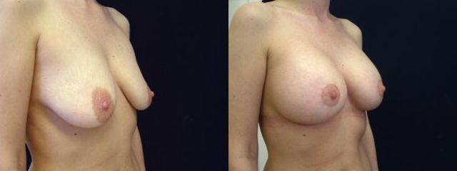 modelace s implantaty 3c
