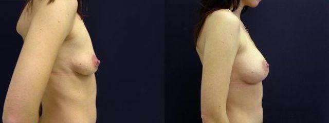 modelace s implantaty 4b