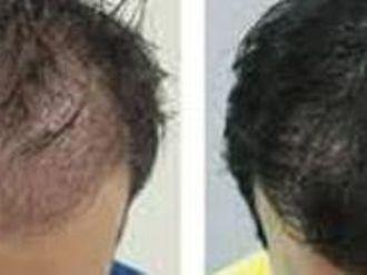 Léčba vypadávání vlasů pomocí plazmaterapie - 727053