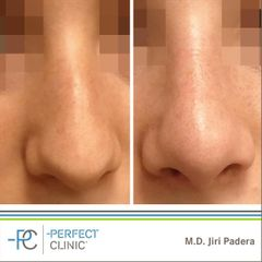 Plastika nosu (Rhinoplastika) - MUDr. Jiří Paděra - Perfect Clinic