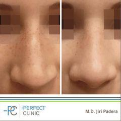 Rhinoplastika - MUDr. Jiří Paděra - Perfect Clinic