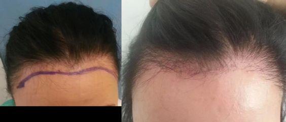 Transplantace vlasů žena 40let (problematická partie - vysoké kouty)