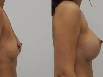 Zvětšení prsou (Augmentace) - 683705
