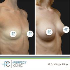 Zvětšení prsou - MUDr. Viktor Fiker