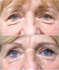 Operace očních víček - MUDr. Viktor Fiker