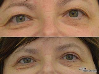 Operace očních víček (Blefaroplastika) - MUDr. Radek Lhotský