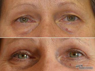 Operace očních víček - 741038