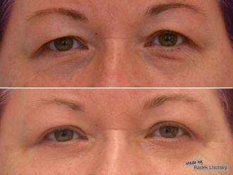 Operace očních víček - 741369