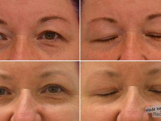 Operace očních víček - 741370