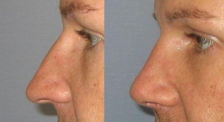 Nos strana před