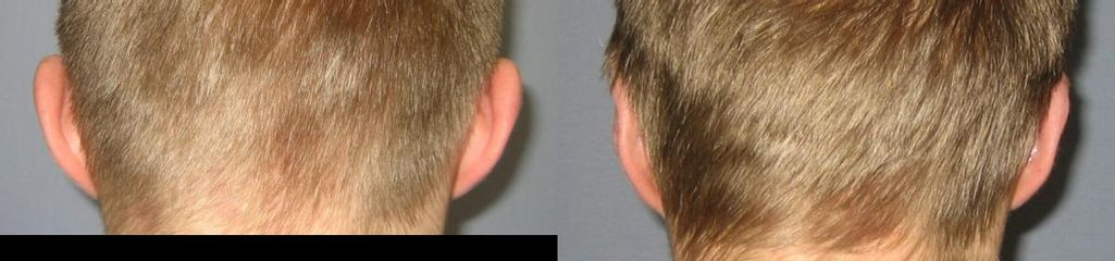 Uši zadní před