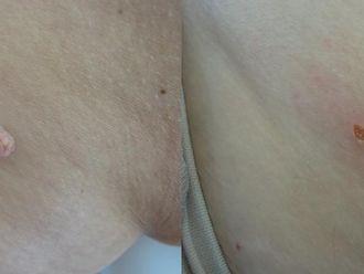 Laserová dermatologie - 732597