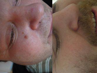 Laserová dermatologie - 732599
