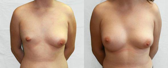 Operace asymetrie prsou