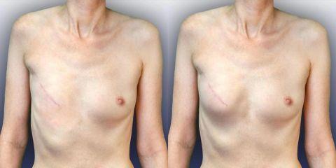 Rekonstrukce prsu