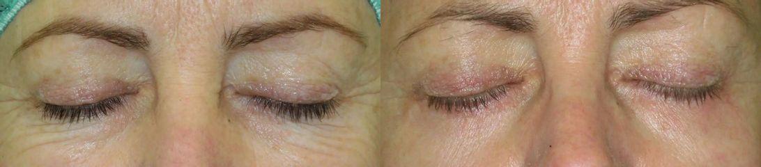 Operace očních víček (Blefaroplastika)