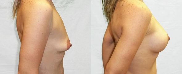 Zvětšení prsou