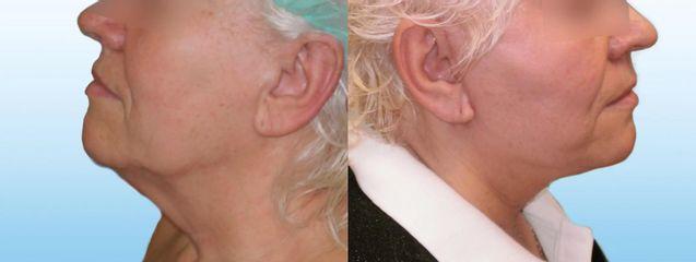 Facelift krku a obličeje