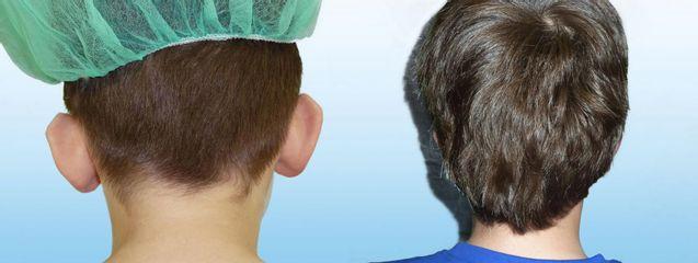 Operace uší
