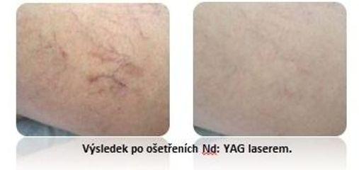 Ošetření pleti YAG laserem