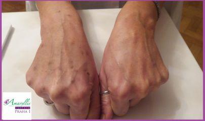 Odstranění pigmentových skvrn na hřbetu ruky- levá ruka ošetřená