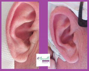 Epilace pánských uší
