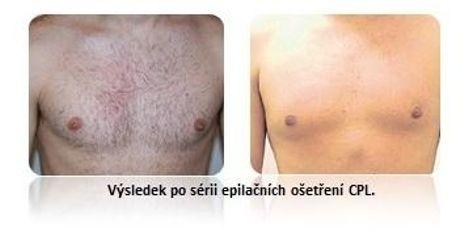 Muž - epilace CPL metodou