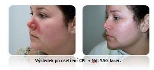 Odstranění červených skvrnek v obličeji