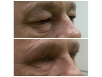 Operace očních víček - 786051