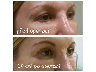 Operace očních víček - 786052