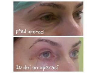 Operace očních víček - MUDr. Tomáš Utíkal