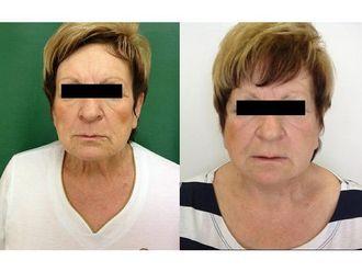 Facelift (operace obličeje), SMAS lifting - 700294