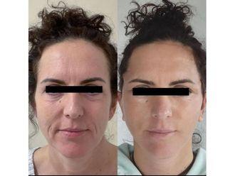 Facelift (operace obličeje), SMAS lifting - 700304