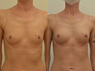 Zvětšení prsou kyselinou hyaluronovou - IP Beauty