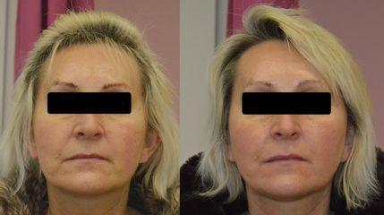 Niťový lifting obličeje - IP Beauty