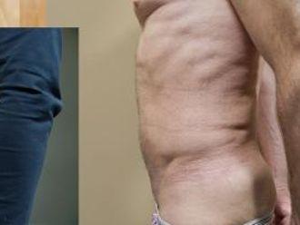 Tumescentní liposukce - 733189